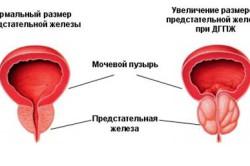 erekciós prosztamol)