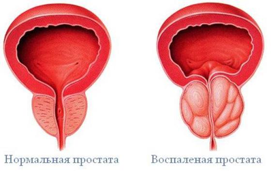 hiányos erekció prosztatagyulladással