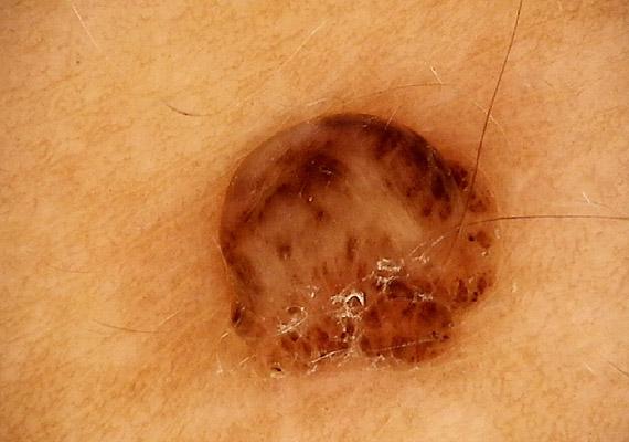 melanoma a péniszen)