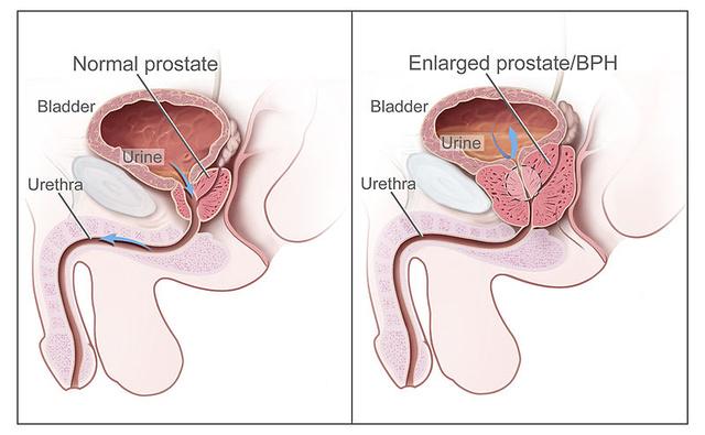 urethritis erekcióval