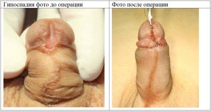pénisz koronális sulcus)