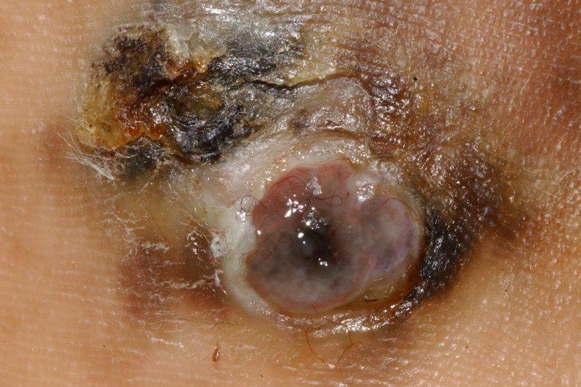melanoma a péniszen nincs állandó merevedési ok