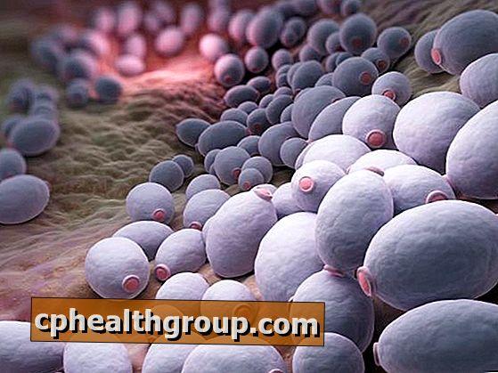 Élesztős gomba (candidiasis) a férfiaknál: taktika patológiás kezelés