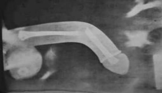 a pénisz deformációja az erekció során