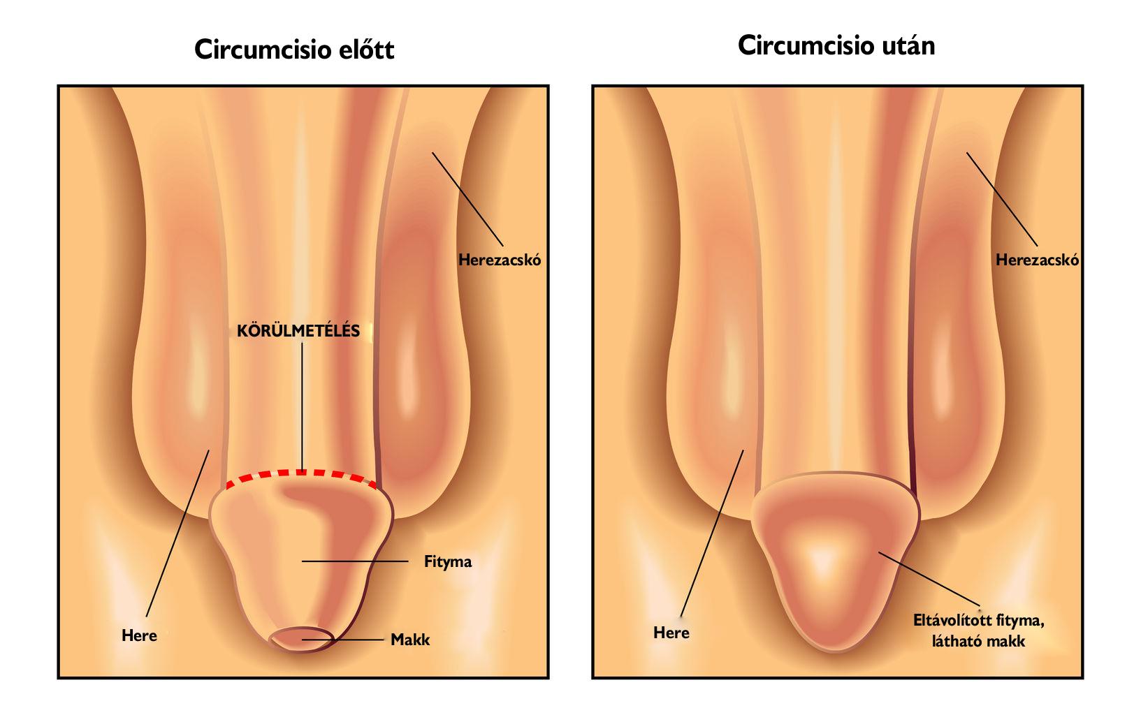 Külső genitáliák sérülése