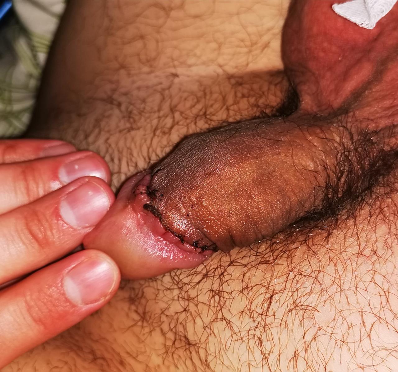 érthetetlen érzések a péniszben