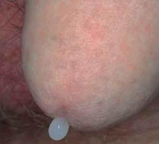 chlamydia a péniszen
