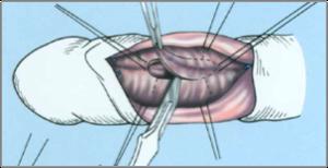 a pénisz görbülete kezelni)