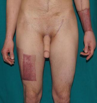 műtéti erekció mekkora a pénisz vastagsága a férfiaknál