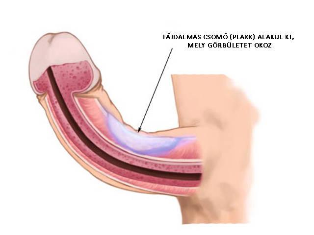 kozmetikai műtét a péniszen