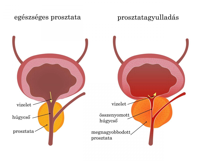 krónikus prosztatagyulladás és merevedési zavar