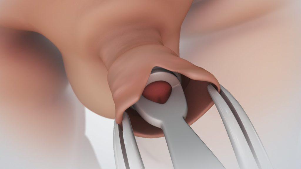 magömlés után az erekció nem múlik el