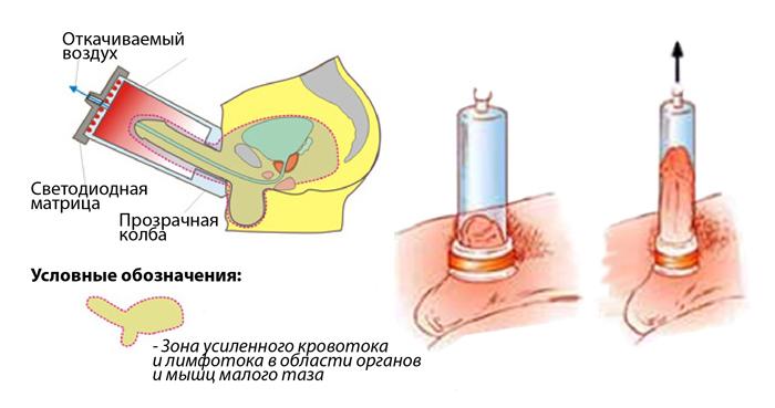 erekció során a fej vörössége egy here közelebb a péniszhez
