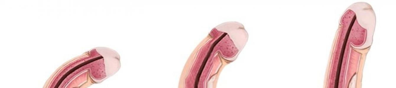 a pénisz görbülete patológia