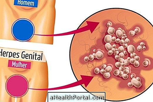 A nemi herpesz