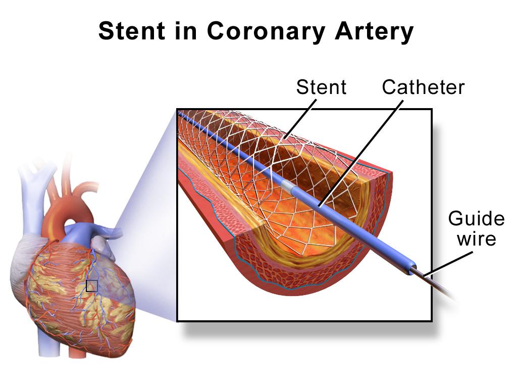 pénisz stent