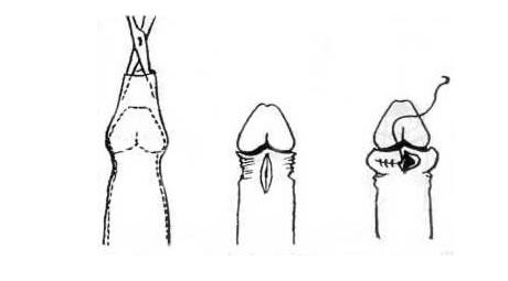 pénisznagyobbító műtét leírása)