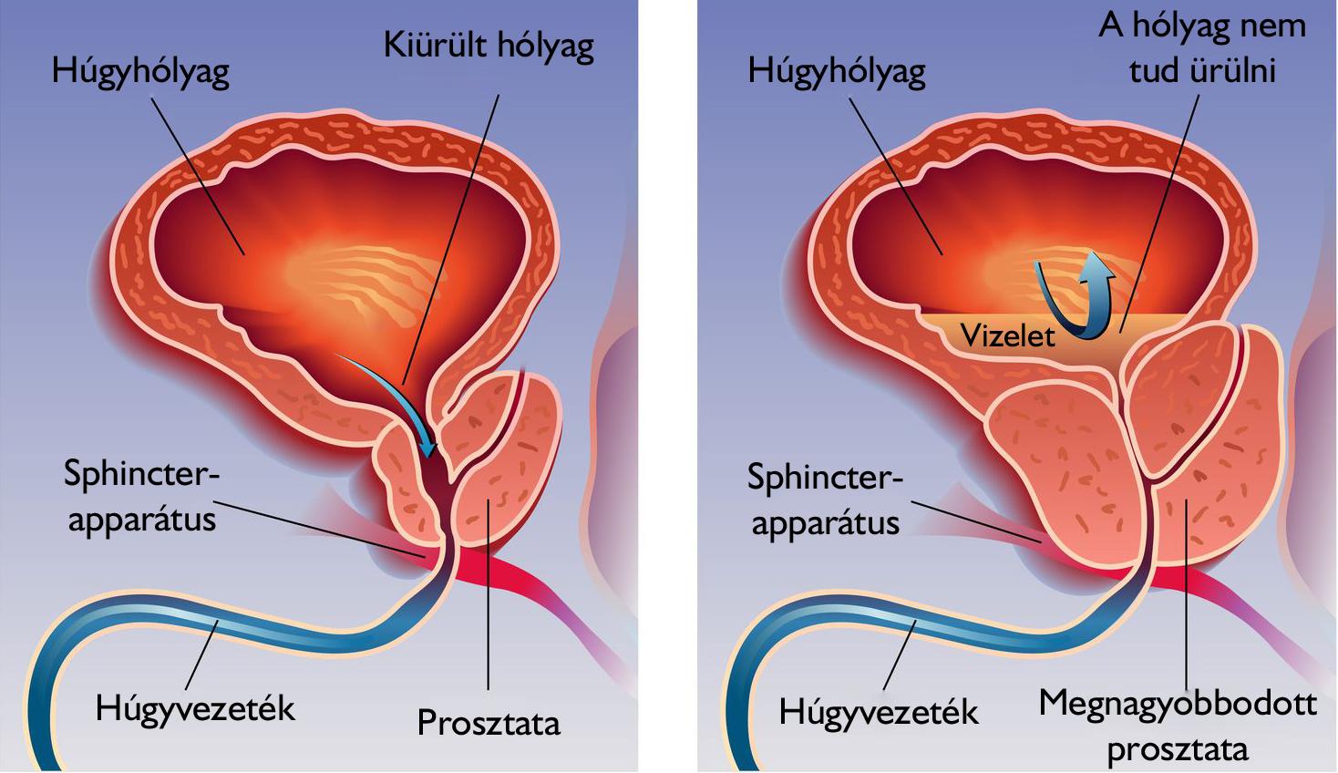 prosztatagyulladás és éjszakai erekció)
