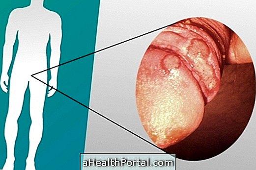 hogyan kell kezelni a herpeszt a péniszen