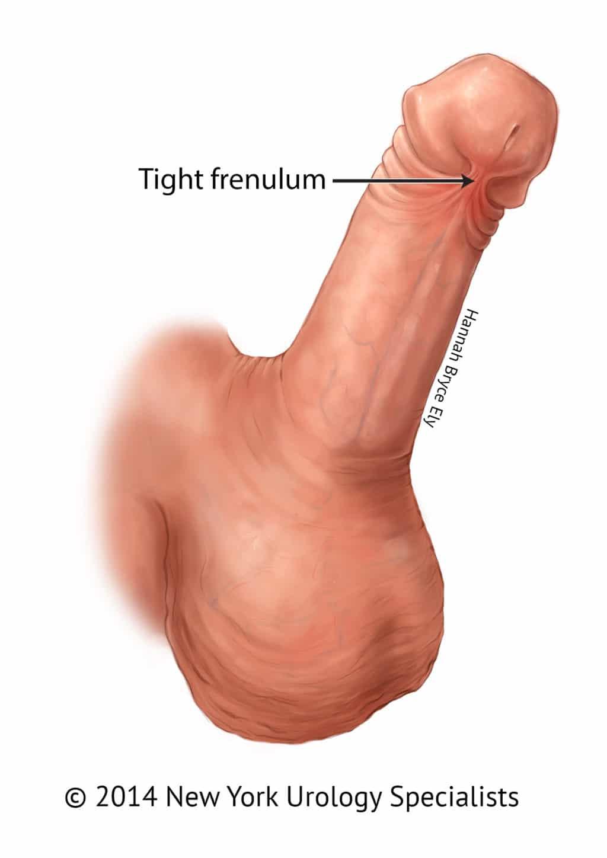 frenulum breve)