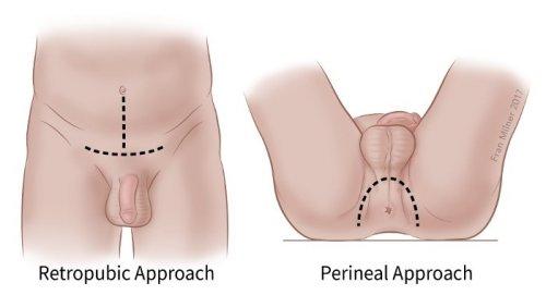 elveszett erekció a közösülés oka miatt pénisz csökkentő gyűrű