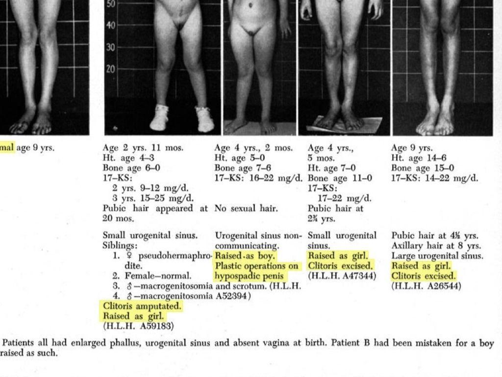 prosztatektómiás erekció nincs vágy nincs merevedés