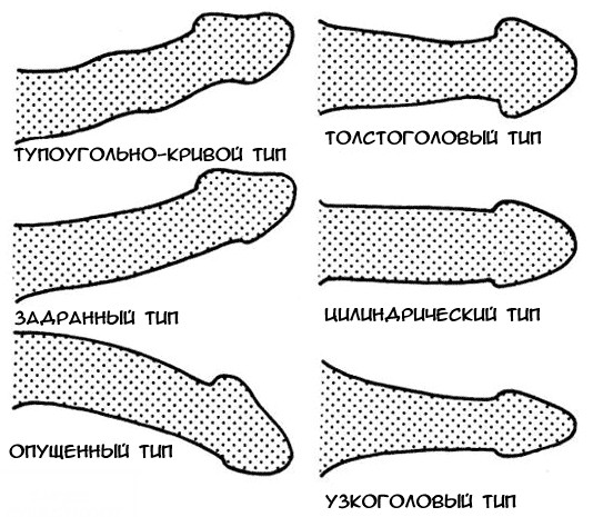 pénisz ívelt balra)