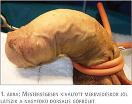 a pénisz görbülete miatt a pénisz az életkorral zsugorodik