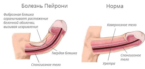 Többé nem tabu téma: A péniszgörbületek és kezelési lehetőségeik - Swiss Clinic