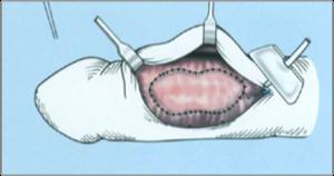 pénisz görbület műtét ára