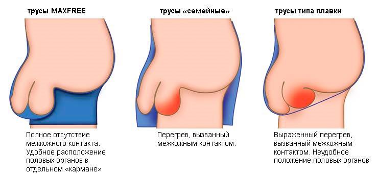 Mitől váladékozhat a pénisz?