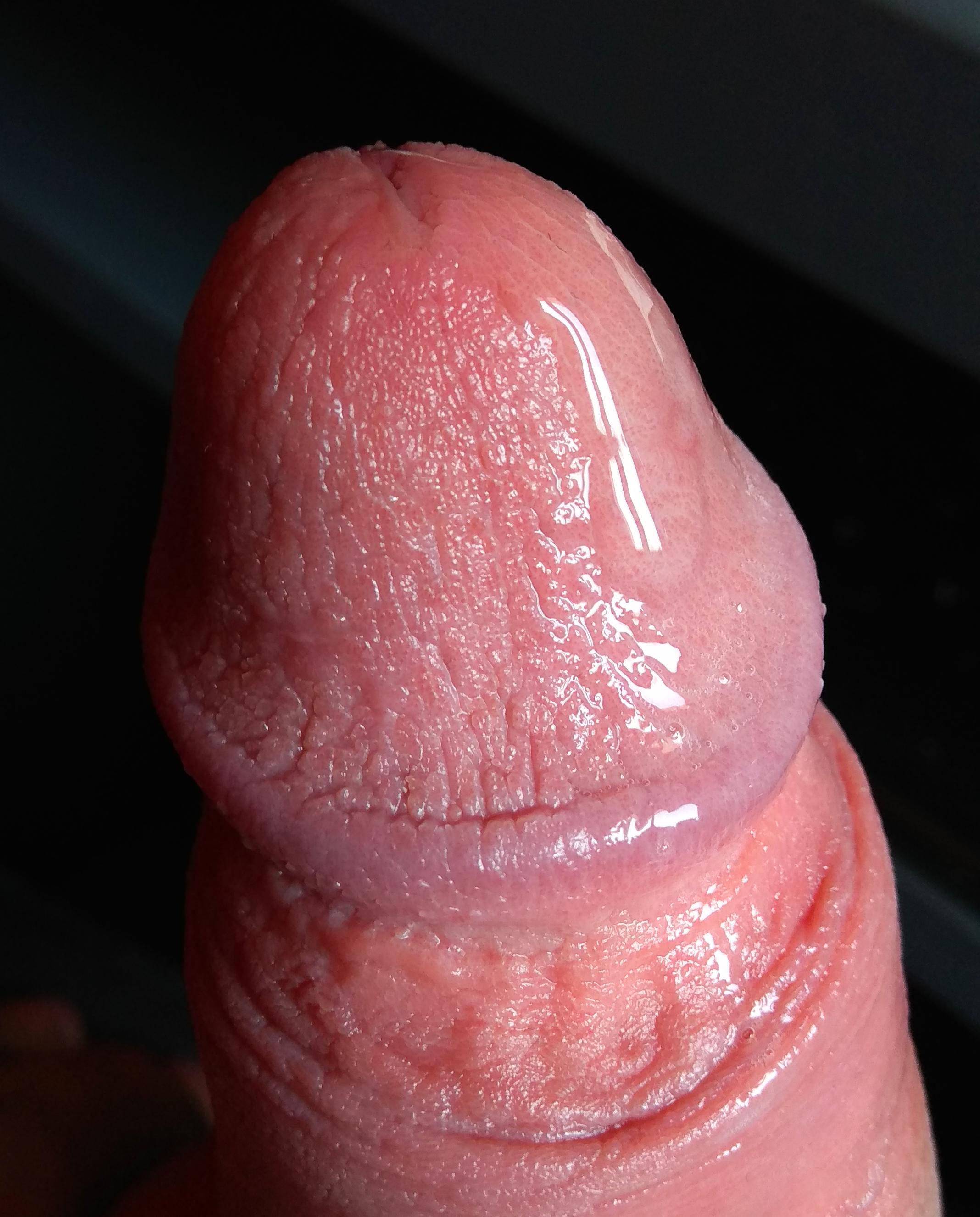 pénisz fotó erekcióban)